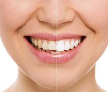 Teeth Whitening in Syosset