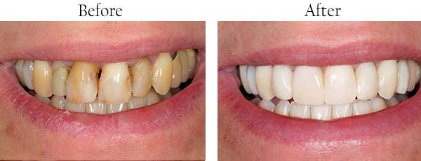 Syosset Before and After Veneers