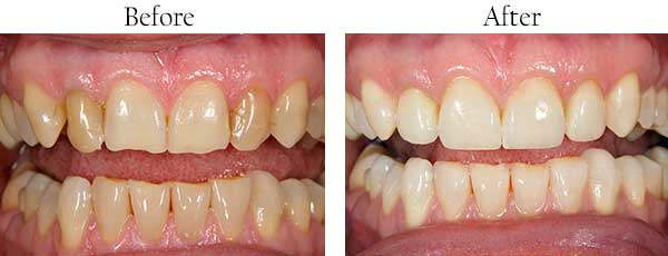 Oyster Bay Before and After Dental Implants